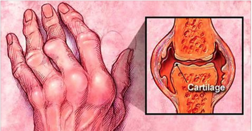 artrite_cartilagem.jpg